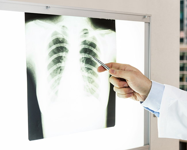 肺炎 レントゲン 胸部エックス線画像で異常があり、淡いすりガラスのような影(間質影と呼びます)だと言われました|一般社団法人日本呼吸器学会